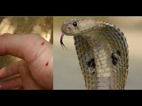 Snake Bites
