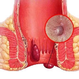 Haemorrhoids (piles)